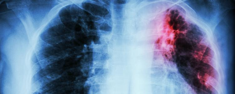 Chest X-ray of pulmonary tuberculosis